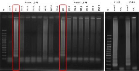 草莓炭疽病等溫PCR核酸檢驗專一性測試電泳分析